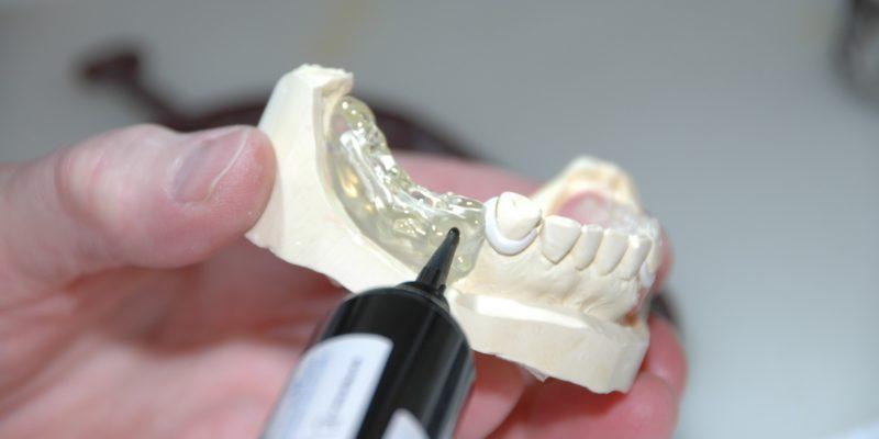 Pourquoi opter pour des prothèses dentaires ?